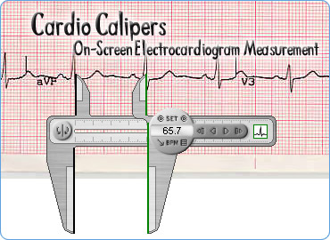Cardio Calipers Screenshot 1