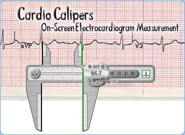 Cardio Calipers Screenshot 2