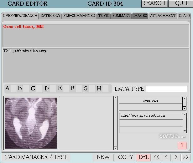 MemoryJammer Screenshot 1