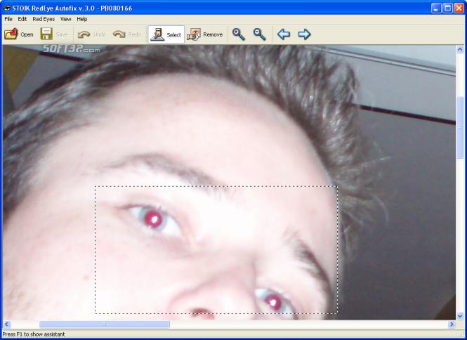 STOIK RedEye Autofix Screenshot 2