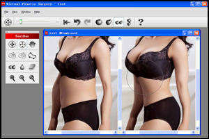 Virtual Plastic Surgery Screenshot 3